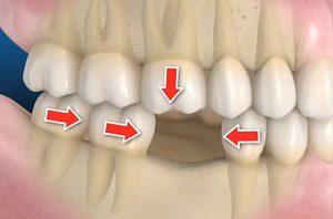 Movimiento de dientes por la falta de uno de ellos